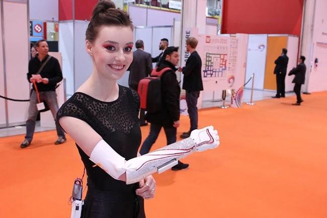 史上最奇葩的假肢看起来像玩具机械手臂