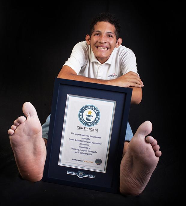 世界上最大的脚,其右脚长40.1厘米,左脚长39.6厘米