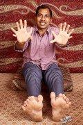 世界上最多手指脚脚趾共28个,奇葩人
